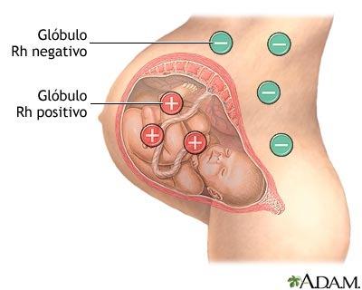 incompatibilidad del Rh en el embarazo