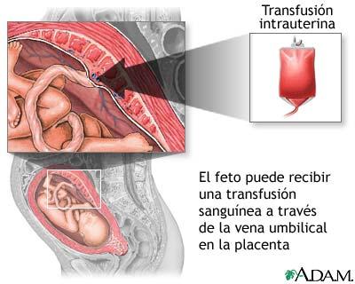 trasfusion intrauterina